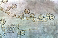800px-Candida_albicans_2